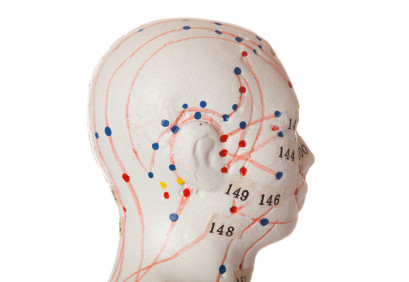 דיקור נוירולוגי יפני לפריצת דיסק