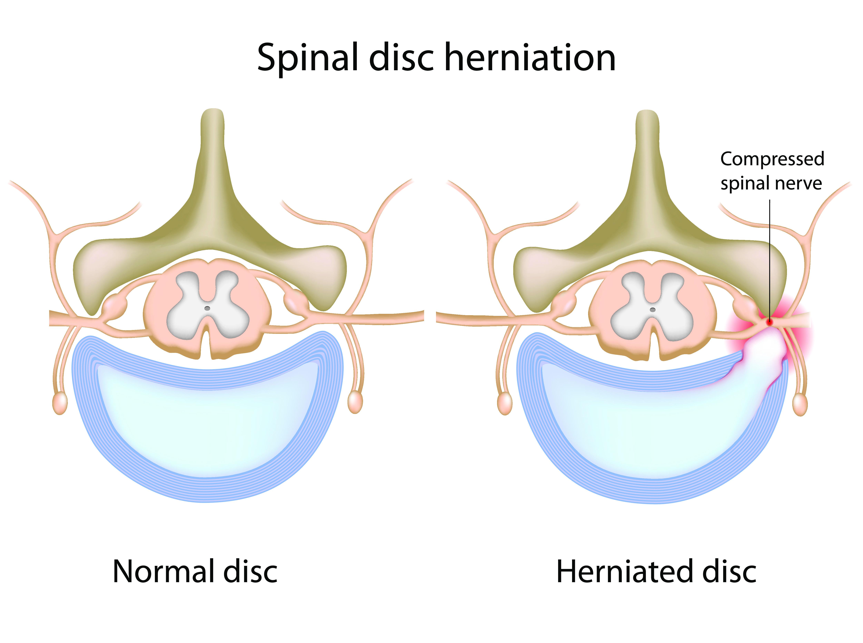 איור של עמוד שדרה עם פריצת דיסק (מימין) לעומת עמוד שדרה ללא פריצת דיסק (צד שמאל)