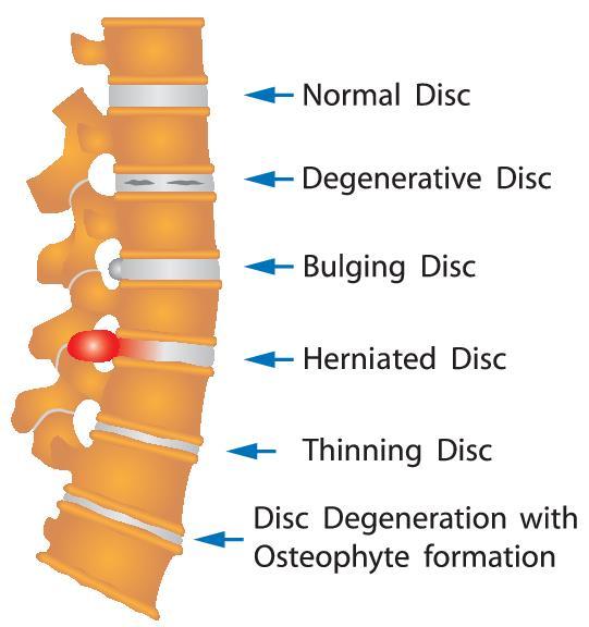 איור של עמוד שדרה במצבים בריאותיים שונים