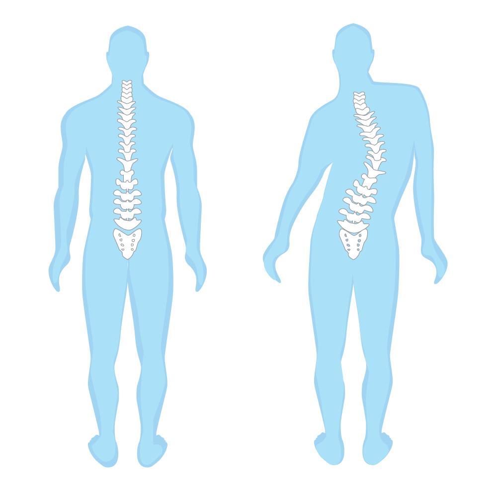 איור המדגים עקמת בעמוד השידרה (סקוליוזיס)     היוצרת חוסר איזון בעמוד השידרה ובשרירי הגב