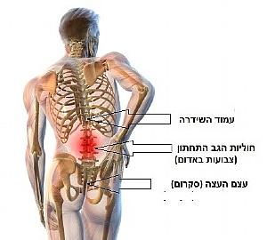 איור נקודות עיקריות שעלולות לגרום לכאבי גב