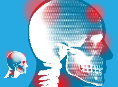 כאבי צוואר המקרינים לראש