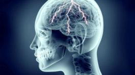 הדמיית צילום רנטגן של ראש עם ברקים בפנים