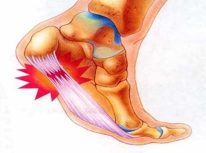 כאבים בכף הרגל
