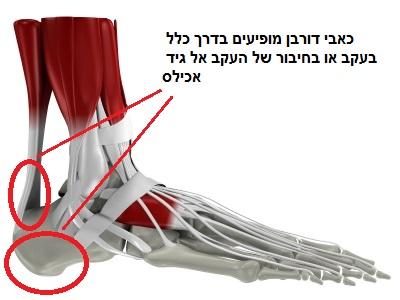תרשים של הנקודות בהן עלולה להתפתח בעית הדורבן בכף הרגל