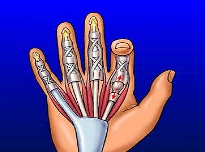 דלקת פרקים באצבעות כף היד